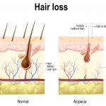 Haarverlust-gross